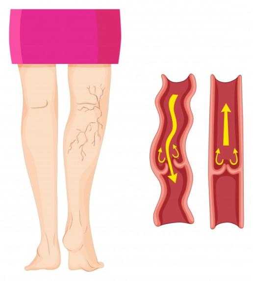 varicose-veins-human-leg_1308-15271
